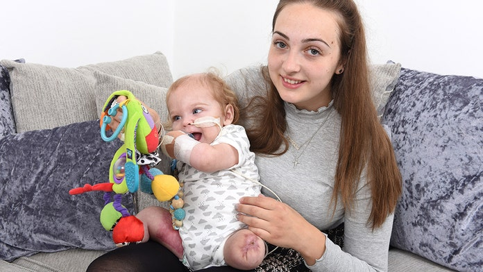 UK baby loses all 4 limbs following horrific sepsis infection, mom claims one leg 'came off in her hand'