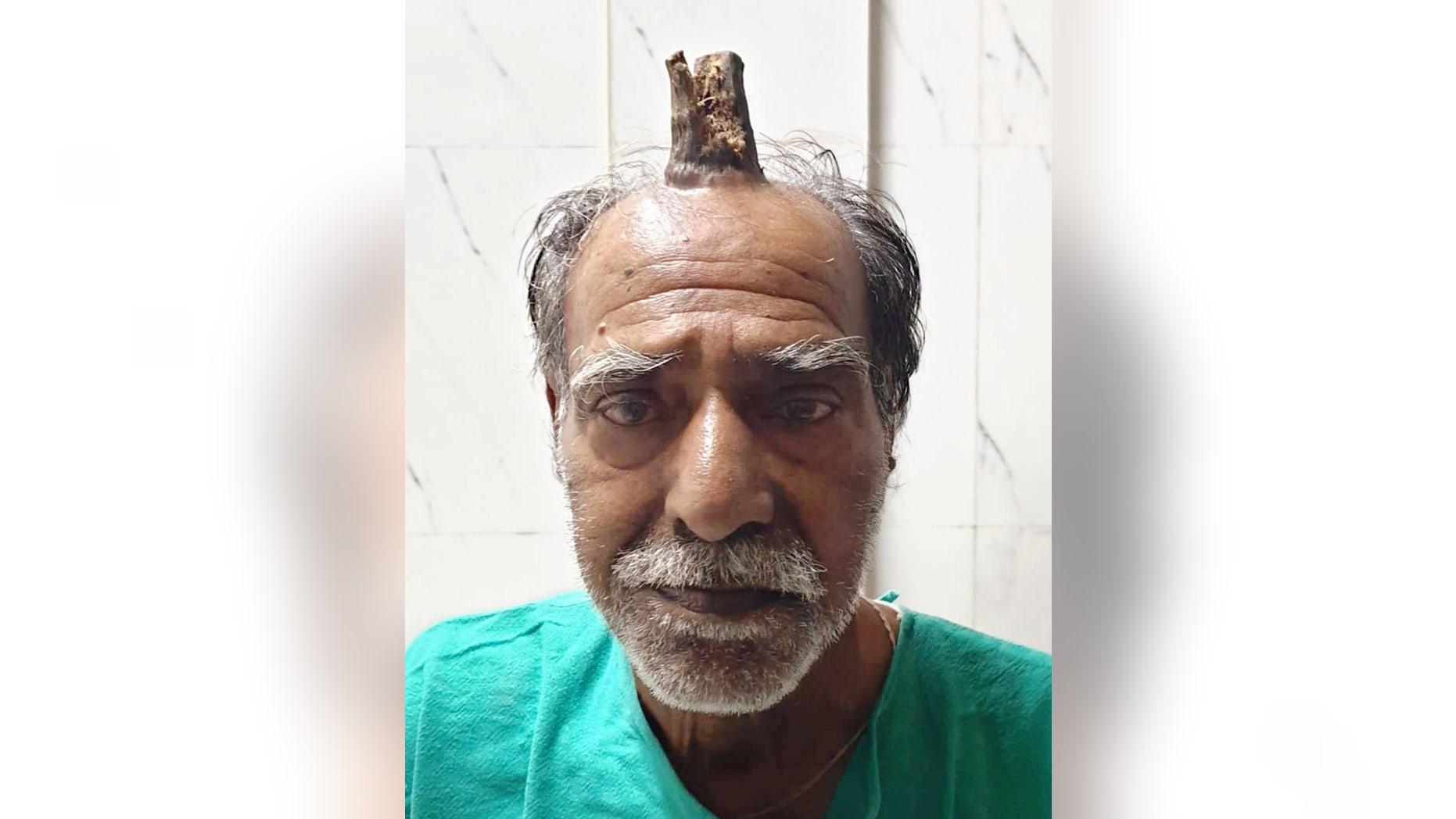 'Tanduk Iblis' Sepanjang 10 Cm Berhasil Dihilangkan dari Kepala Pria India