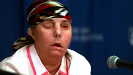 Face transplant recipient's donor face has been failing, doctors say