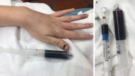 Rhode Island woman's blood turns black after using over-the-counter medication for toothache