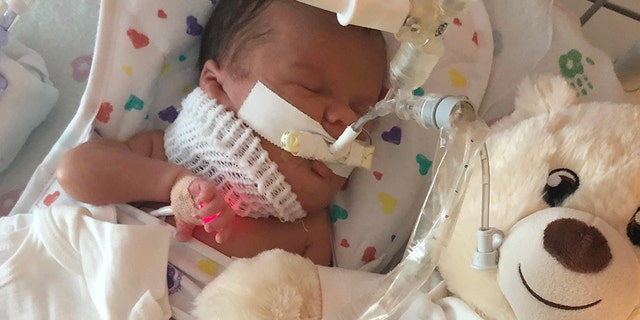 Her parents said she is expected to join her siblings at home in October, and that she is recovering well from surgery.
