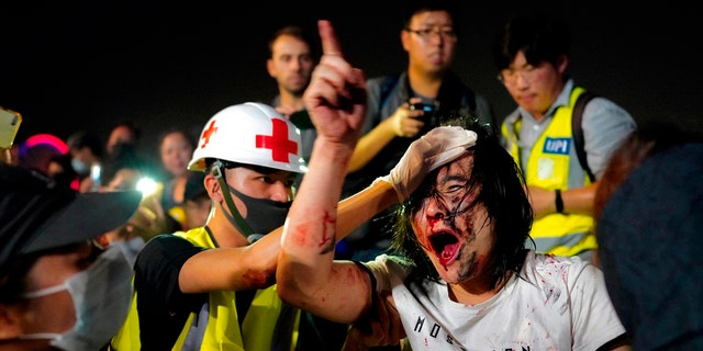 A medic treats a pro-Beijing man after he was hit by protesters for waving a Chinese national flag during a rally at Tamar park in Hong Kong, Saturday, Sept. 28, 2019. Thousands of people gathered Saturday for a rally in downtown Hong Kong, belting out songs, speeches and slogans to mark the fifth anniversary of the start of the 2014 Umbrella protest movement that called for democratic reforms in the semiautonomous Chinese territory. (AP Photo/Vincent Yu)