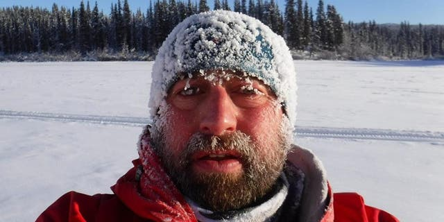 Nick Griffiths lost his toes to frostbite he suffered during the Yukon Arctic Race in 2018.