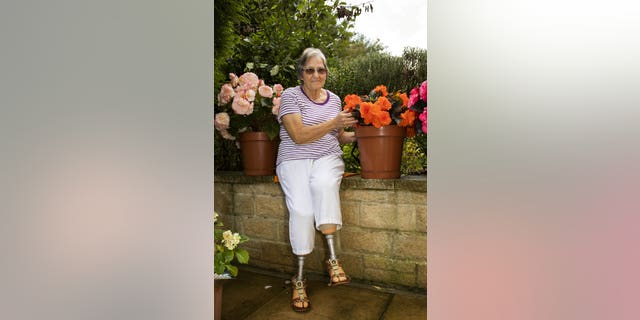 gardening Buttery said she spent eight months in the hospital and underwent 60 surgeries.
