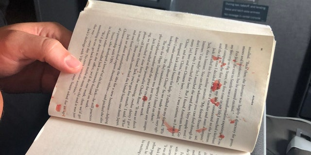 """Bloody mess on my flight to Miami. Woman in aisle seat has blister on her foot pop. Blood splatters across aisle, including on the two guys in front of me, one of their books, and the window,"" passenger Andy Slater said of the scene."