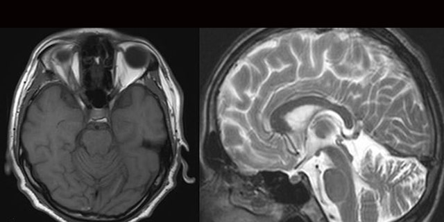 The scan revealed the man had neurosyphilis.