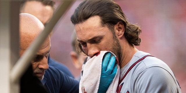 "Culberson被91英里/小时的快球击中后被取下。 该团队周日宣布他患有""多处面部骨折""。 (美联社照片/ Manuel Balce Ceneta)"