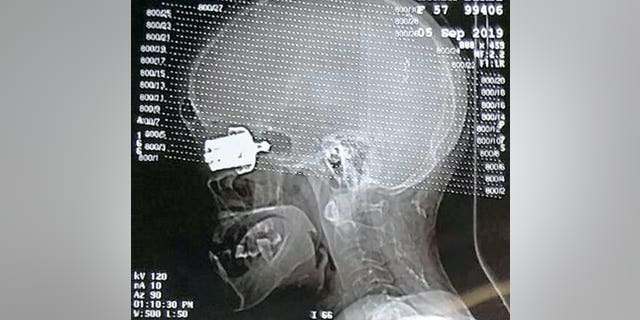 Only a CT scan could show how deeply the object had jammed near her brain. (SWNS)