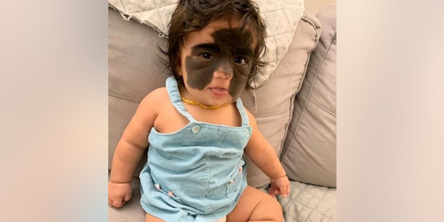 With Florida Skin Born Toddler Due 'batman' Mask Condition To Rare