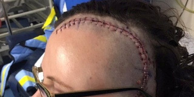 Yasmin Clapp's scar from where the tumor was removed.