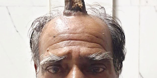 Madhya Pradesh Farmer Grows Horn On Head After Injury
