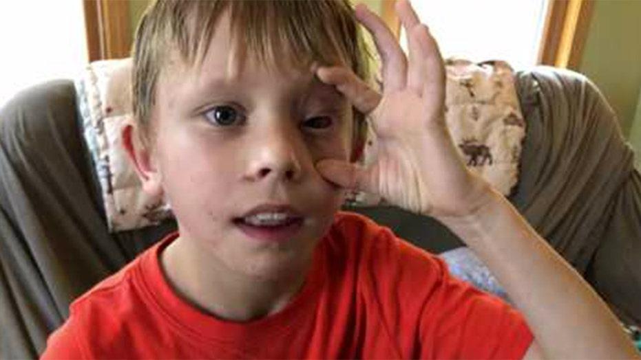 Colorado boy, 8, injured in mountain lion attack describes