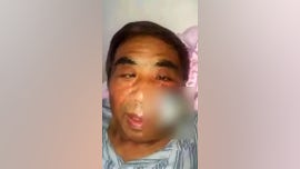 Man's face rotted from infected mosquito bite: report