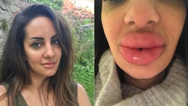 Dentist left with swollen 'lumps' in lips after seeking cheap fillers