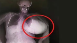 Woman has 'basketball-sized' breast tumor removed after letting it grow for 2 years, report says