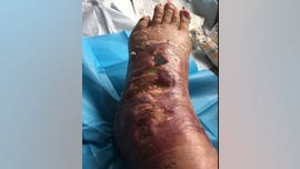 Woman contracts flesh-eating bacteria after insect bite, nearly loses foot: 'I felt like I had been stabbed'