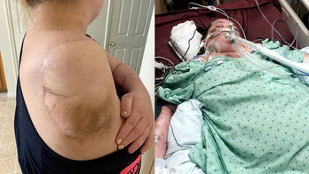 Mom loses arm to flesh-eating bacteria, felt 'helpless' after waking from coma