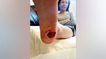 Mom left with gaping hole in foot after suspected wart revealed to be cancer