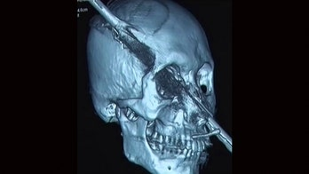 Man impaled through nostril, skull after falling 15 feet onto steel rod, report says