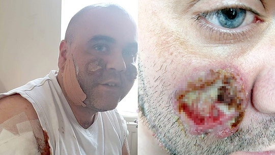 Man's rare skin condition causes pus-filled ulcers on face, body: 'I look like a zombie'