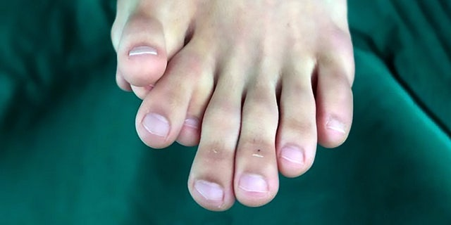 Man says being born with 9 toes was not 'lucky' sign like his parents claimed