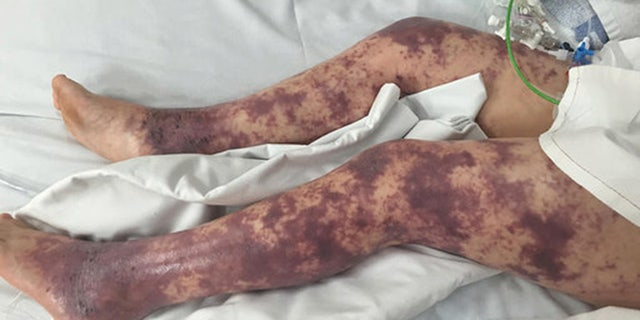 The horrible rash that took over Brogans legs.