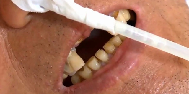The man arrived at the hospital complaining that he had swallowed the structure that keeps his false front teeth in place.