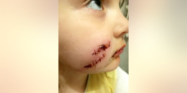 Molly Beresford, 5, was reportedly bitten by a dog after tagging along with her mother to the home of a woman selling furniture.