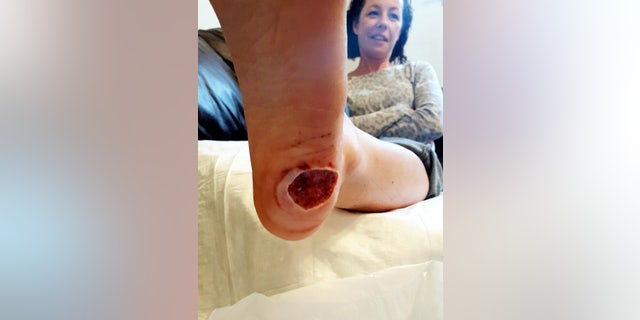 She said the initial pain felt like glass was sticking out of her foot.