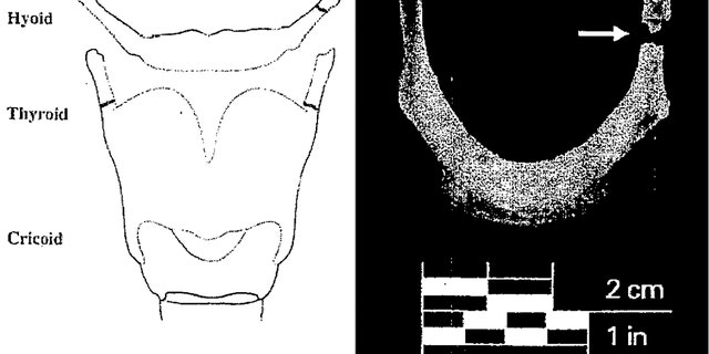 A diagram from Jeffrey Epstein's autopsy report summary showing the approximate location of a fracture on his hyoid bone. (New York City Medical Examiner's Office)