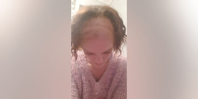 Cliare Curtis shows the scar caused by her brain surgery and her thinning hair due to chemotherapy treatments.