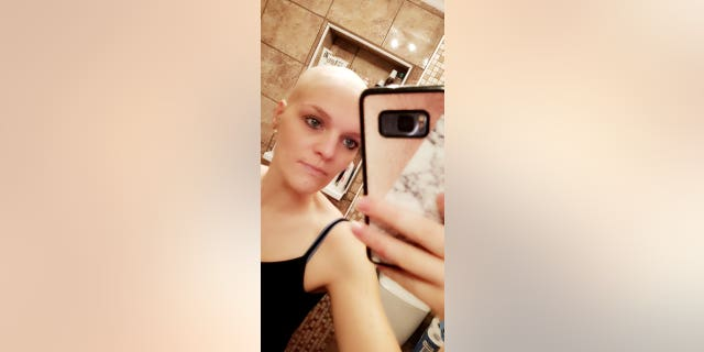 Claire Curtis after losing her hair.