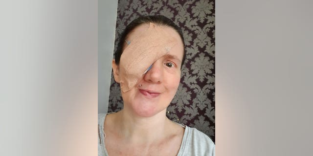 Claire Willis with her infected eye. (SWNS)