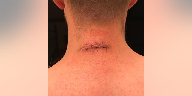 Ryan's neck after one of his initial surgeries.