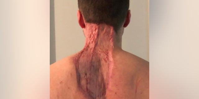 A large area of skin was removed from Ryan's back and neck.