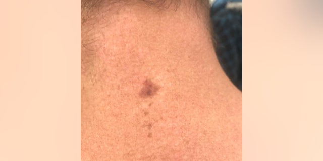 The spot on the back of Ryan's neck that was later determined to be cancerous.