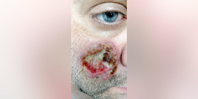 Young's ulcers are caused by pyoderma gangrenosum,