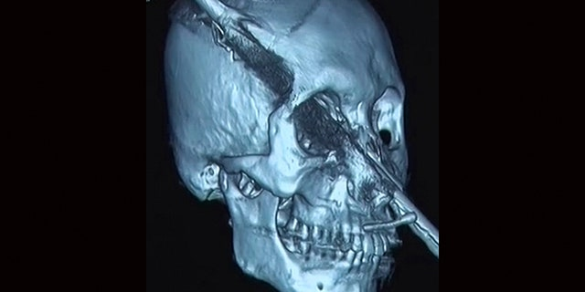 They weren't sure about the extent of damage done by the rod until a brain scan revealed minimal bleeding.