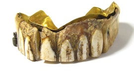 Dentures discovery: Centuries-old false teeth found in field, up for auction