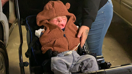 Texas baby born without skin on torso and limbs goes home months after successful procedure