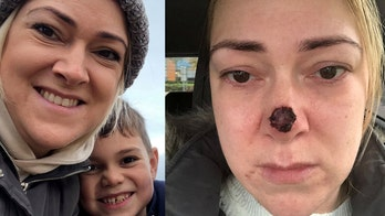 Mom told cancer would 'eat away at your nose' without urgent treatment