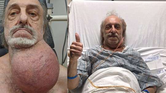New Jersey man has tumor size of his head removed from neck