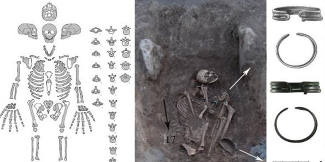 The skeletal remains, which have sustained a number of injuries. Jewelry discovered with the skeleton indicates that the woman was of high status.