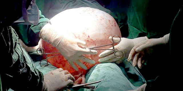 Surgeons worked to carefully remove the cyst through a 2-centimeter incision.