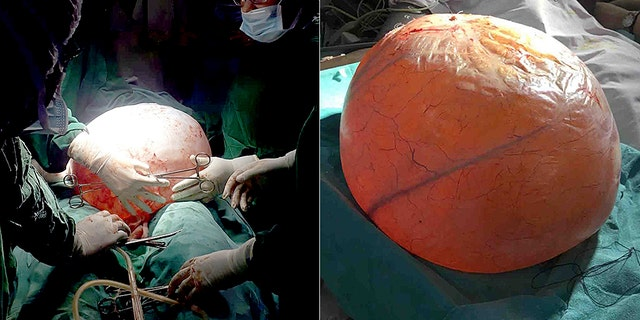 The cyst weighed 40 pounds and was the largest many at the hospital had ever seen.