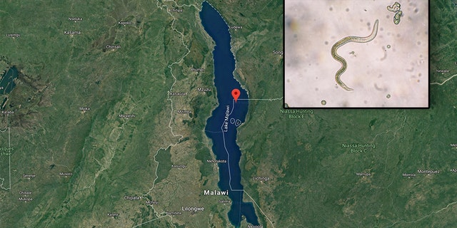 "A British man nearly died after a parasite crawled up his penis and started laying eggs after he went for a swim in Lake Malawi in southeast Africa during a ""holiday of a lifetime"" with pals. (Photo: Google Maps/iStock)"