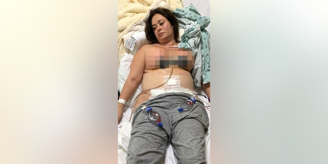 Colosimo, pictured after the multiple procedures, said she could tell immediately that something was wrong.