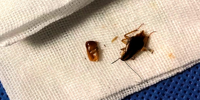 His doctor said the largest cockroach removed was the mother who had laid the eggs.