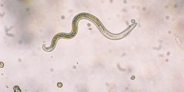 The woman's eye was likely infected by the parasitic worm (not pictured) following a trail run in California.