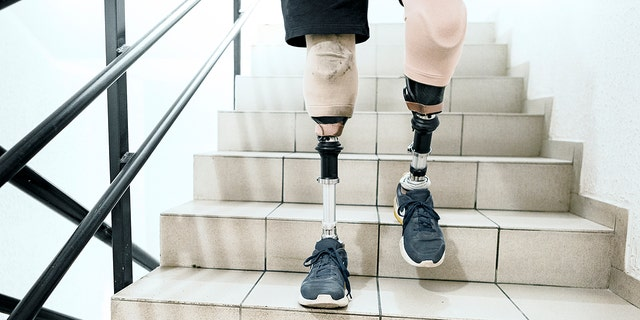 """Brett Winters, a senior at Pacific High School in San Bernardino, California, was born without tibia bones in his legs. As a baby, his mother wastold by doctors that Winters could either spend life in a wheelchair or amputate his legs.<br data-cke-eol=""""1"""">"""